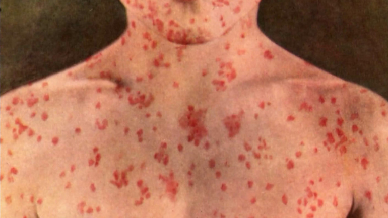 Measles Detected in California School With High Number of Unvaccinated Children.