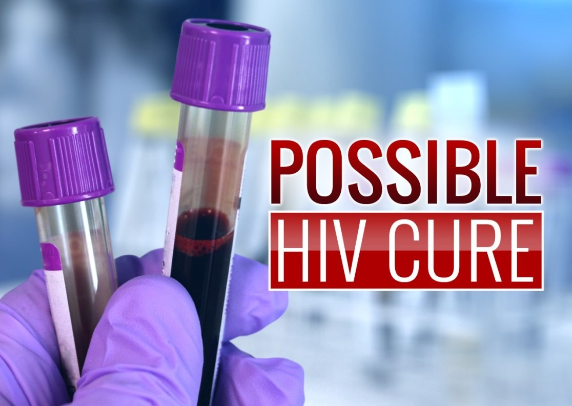 HIV reported cured in second patient, a milestone in the global AIDS epidemic.